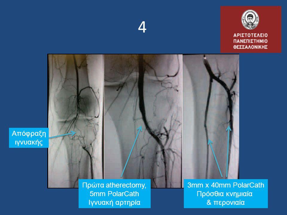 4 Πρώτα atherectomy, 5mm PolarCath Ιγνυακή αρτηρία 3mm x 40mm PolarCath Πρόσθια κνημιαία & περονιαία Απόφραξη ιγνυακής