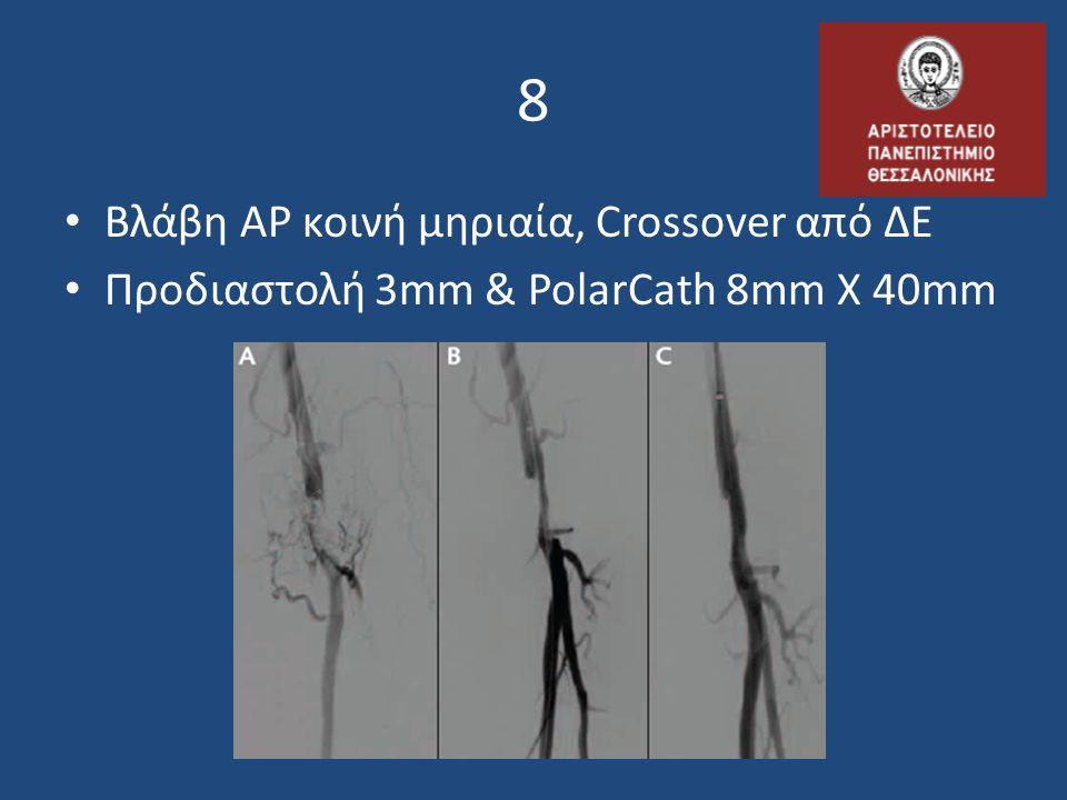 8 • Βλάβη ΑΡ κοινή μηριαία, Crossover από ΔΕ • Προδιαστολή 3mm & PolarCath 8mm X 40mm