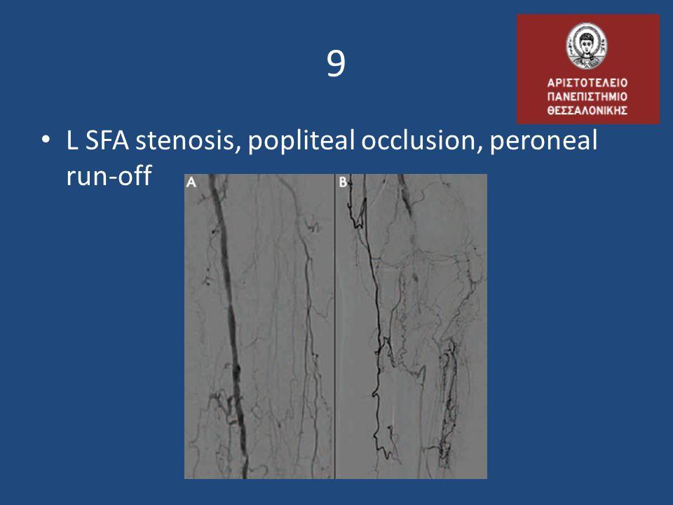 9 • L SFA stenosis, popliteal occlusion, peroneal run-off
