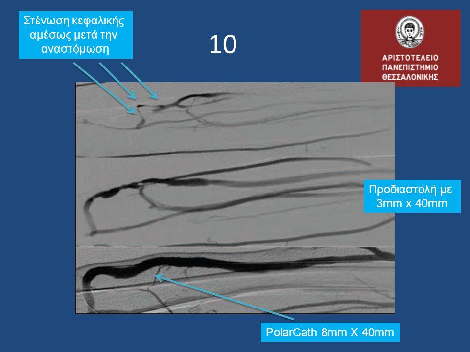 1010 Προδιαστολή με 3mm x 40mm PolarCath 8mm X 40mm Στένωση κεφαλικής αμέσως μετά την αναστόμωση
