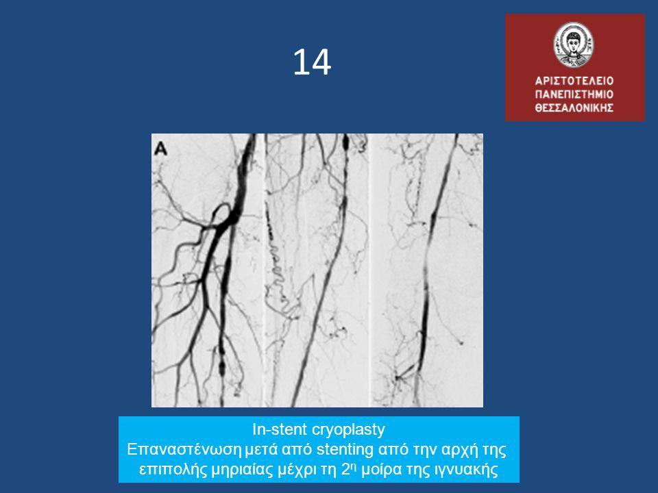 14 In-stent cryoplasty Επαναστένωση μετά από stenting από την αρχή της επιπολής μηριαίας μέχρι τη 2 η μοίρα της ιγνυακής