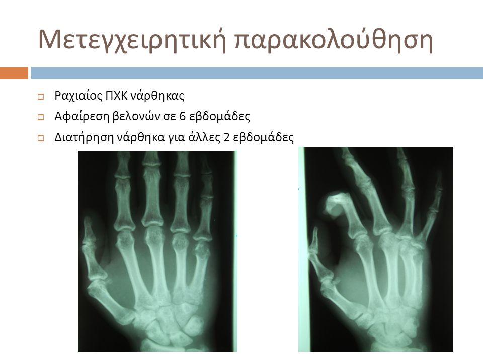 Μετεγχειρητική παρακολούθηση  Ραχιαίος ΠΧΚ νάρθηκας  Αφαίρεση βελονών σε 6 εβδομάδες  Διατήρηση νάρθηκα για άλλες 2 εβδομάδες