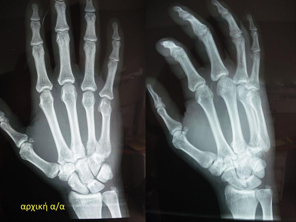 Βιβλιογραφία 1) Gurland M.Carpometacarpal joint injuries of the fingers.