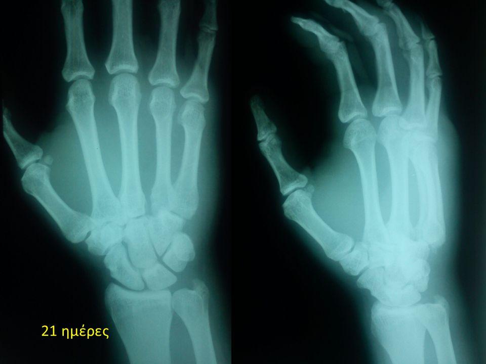 Διάγνωση  Ραχιαίο εξάρθρημα 4 ης – 5 ης κάρπο - μετακάρπιας  Αποσπαστικό # αγκιστρωτού