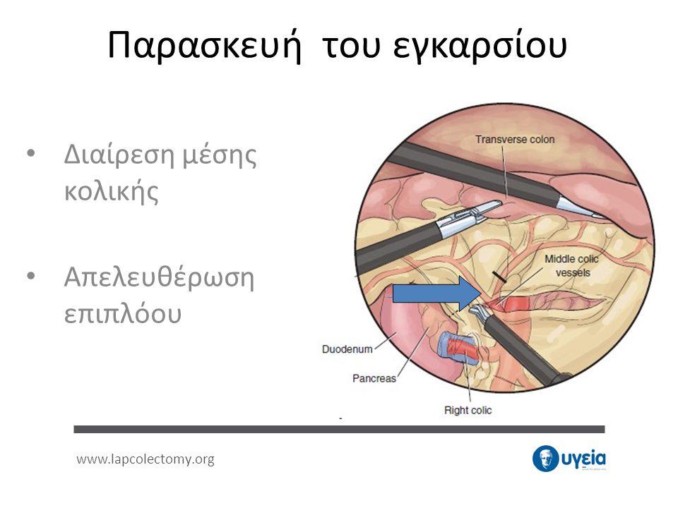 Παρασκευή του εγκαρσίου • Διαίρεση μέσης κολικής • Απελευθέρωση επιπλόου www.lapcolectomy.org