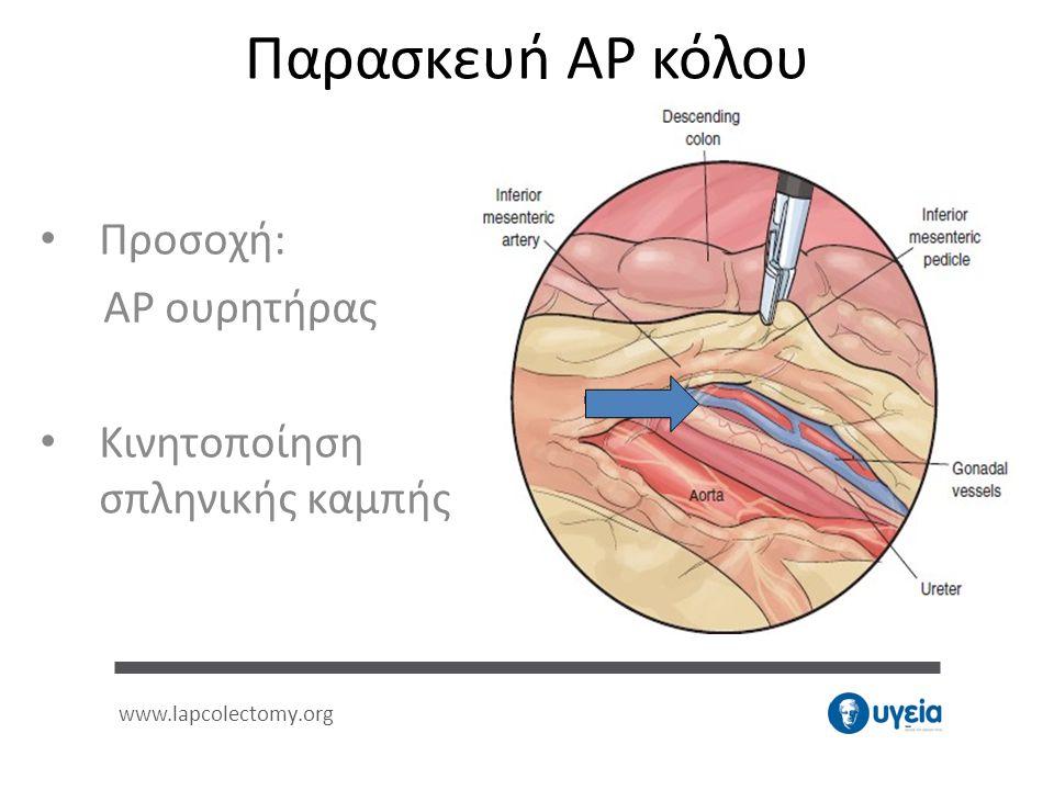 • Προσοχή: ΑΡ ουρητήρας • Κινητοποίηση σπληνικής καμπής www.lapcolectomy.org Παρασκευή ΑΡ κόλου