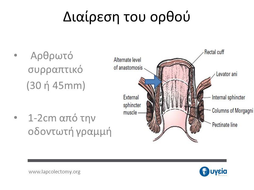Διαίρεση του ορθού • Αρθρωτό συρραπτικό (30 ή 45mm) • 1-2cm από την οδοντωτή γραμμή www.lapcolectomy.org