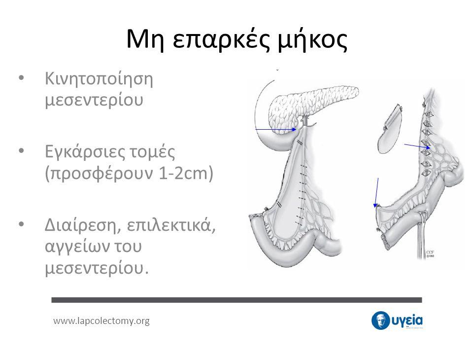 Μη επαρκές μήκος • Κινητοποίηση μεσεντερίου • Εγκάρσιες τομές (προσφέρουν 1-2cm) • Διαίρεση, επιλεκτικά, αγγείων του μεσεντερίου. www.lapcolectomy.org