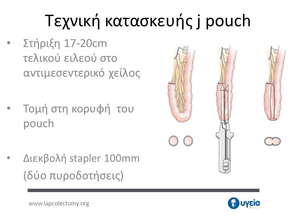 Τεχνική κατασκευής j pouch • Στήριξη 17-20cm τελικού ειλεού στο αντιμεσεντερικό χείλος • Τομή στη κορυφή του pouch • Διεκβολή stapler 100mm (δύο πυροδ