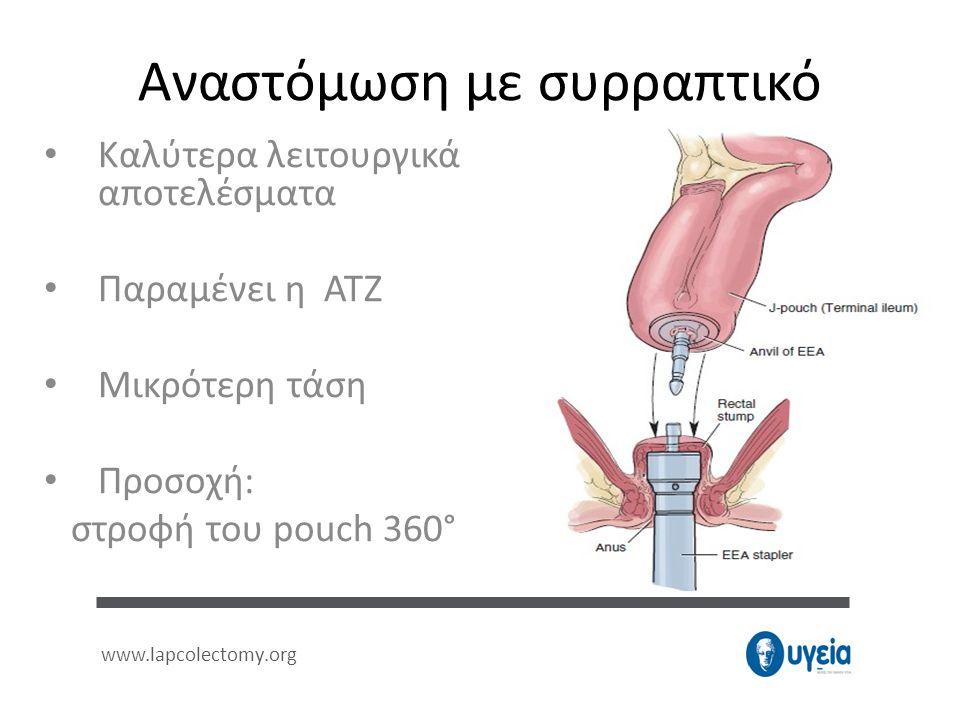 Αναστόμωση με συρραπτικό • Kαλύτερα λειτουργικά αποτελέσματα • Παραμένει η ATZ • Μικρότερη τάση • Προσοχή: στροφή του pouch 360° www.lapcolectomy.org
