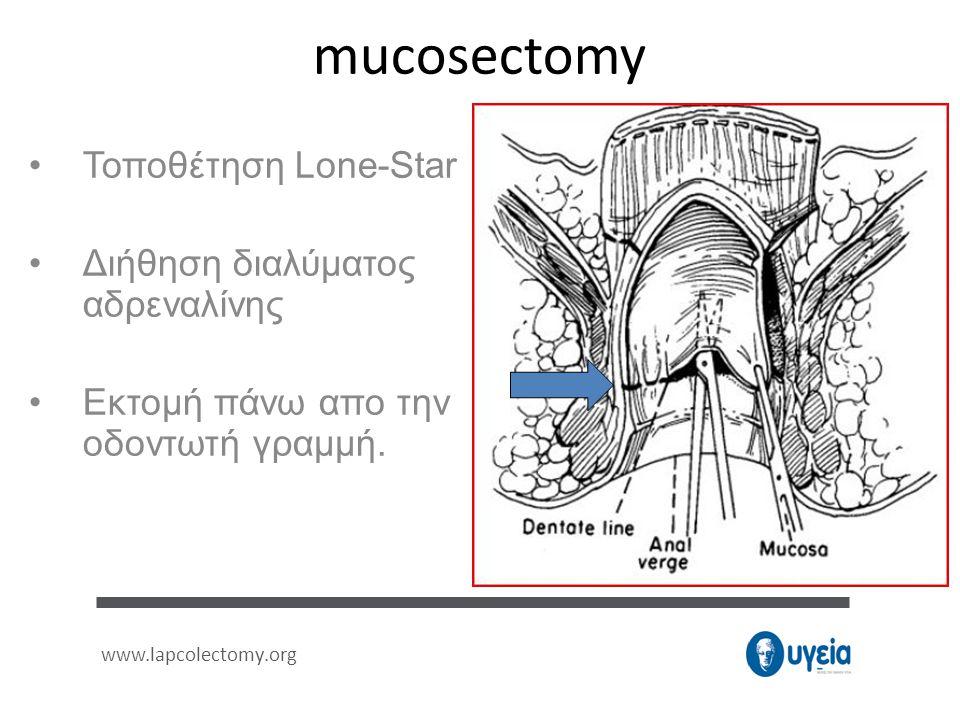 mucosectomy •Τοποθέτηση Lone-Star •Διήθηση διαλύματος αδρεναλίνης •Εκτομή πάνω απο την οδοντωτή γραμμή. www.lapcolectomy.org