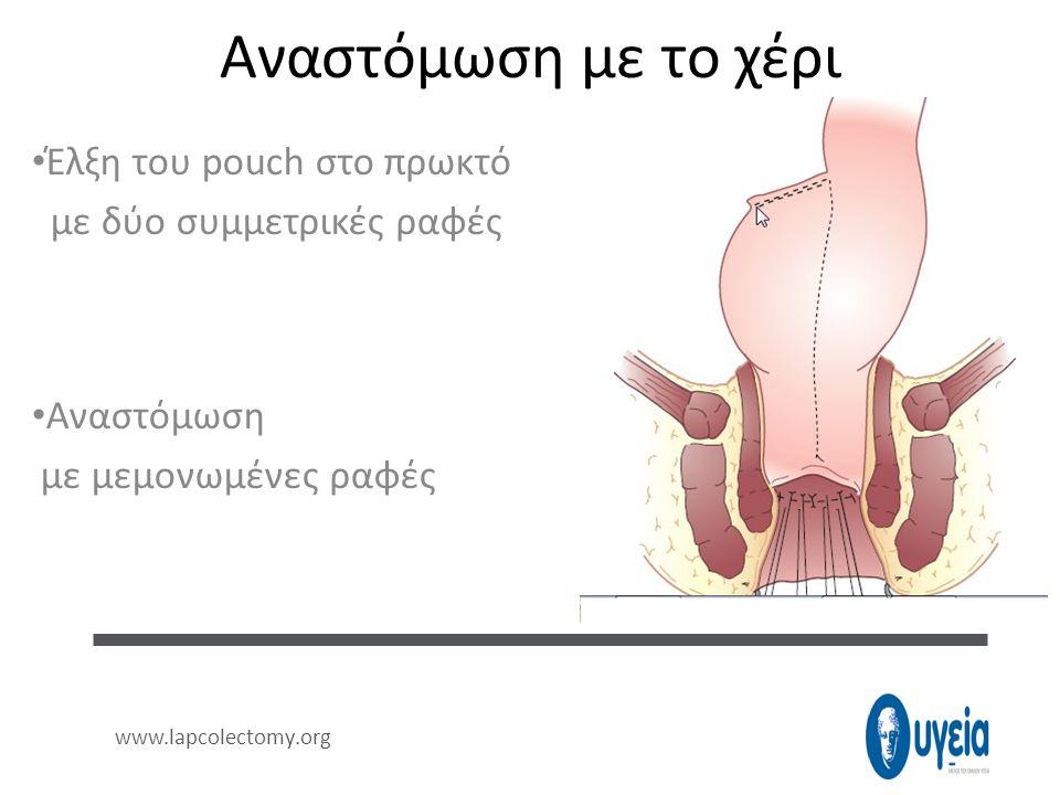 Αναστόμωση με το χέρι • Έλξη του pouch στο πρωκτό με δύο συμμετρικές ραφές • Αναστόμωση με μεμονωμένες ραφές www.lapcolectomy.org
