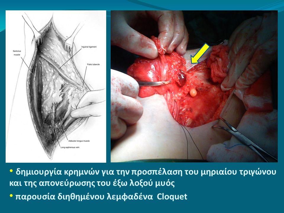 • δημιουργία κρημνών για την προσπέλαση του μηριαίου τριγώνου και της απονεύρωσης του έξω λοξού μυός • παρουσία διηθημένου λεμφαδένα Cloquet