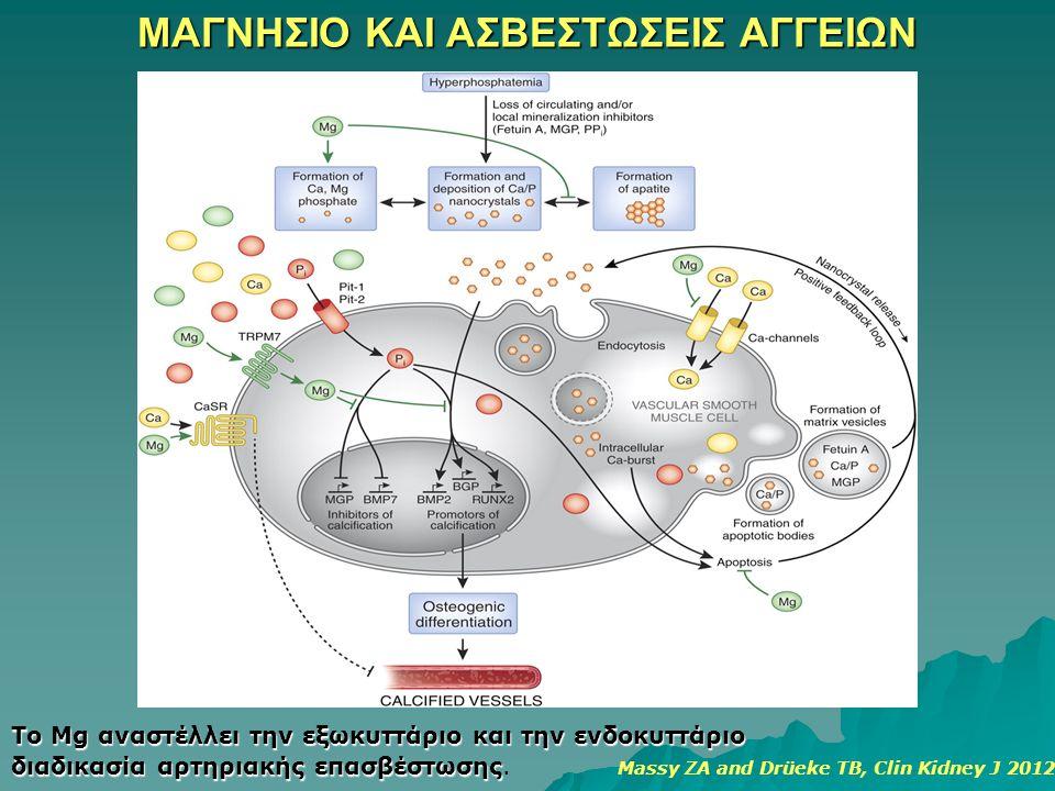 ΜΑΓΝΗΣΙΟ ΚΑΙ ΑΣΒΕΣΤΩΣΕΙΣ ΑΓΓΕΙΩΝ Το Mg αναστέλλει την εξωκυττάριο και την ενδοκυττάριο διαδικασία αρτηριακής επασβέστωσης διαδικασία αρτηριακής επασβέ