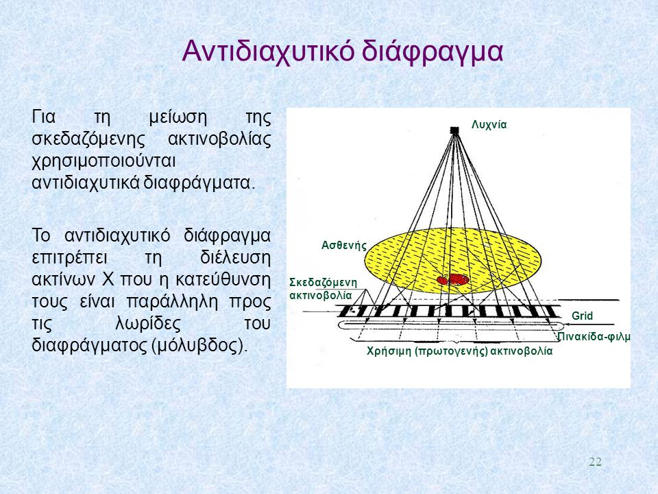 Για τη μείωση της σκεδαζόμενης ακτινοβολίας χρησιμοποιούνται αντιδιαχυτικά διαφράγματα. Το αντιδιαχυτικό διάφραγμα επιτρέπει τη διέλευση ακτίνων X που