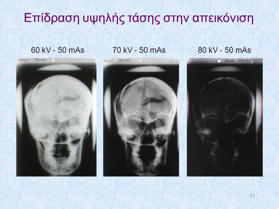 60 kV - 50 mAs 70 kV - 50 mAs 80 kV - 50 mAs Eπίδραση υψηλής τάσης στην απεικόνιση 31