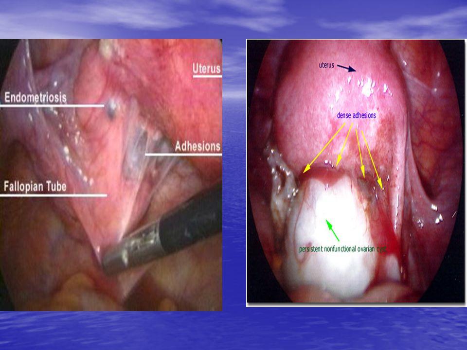 Αντιμετώπιση ενδομητρίωσης • Φαρμακευτική • Χειρουργική: Συντηρητική ή ριζική • Συνδυασμός φαρμακευτικής και χειρουργικής