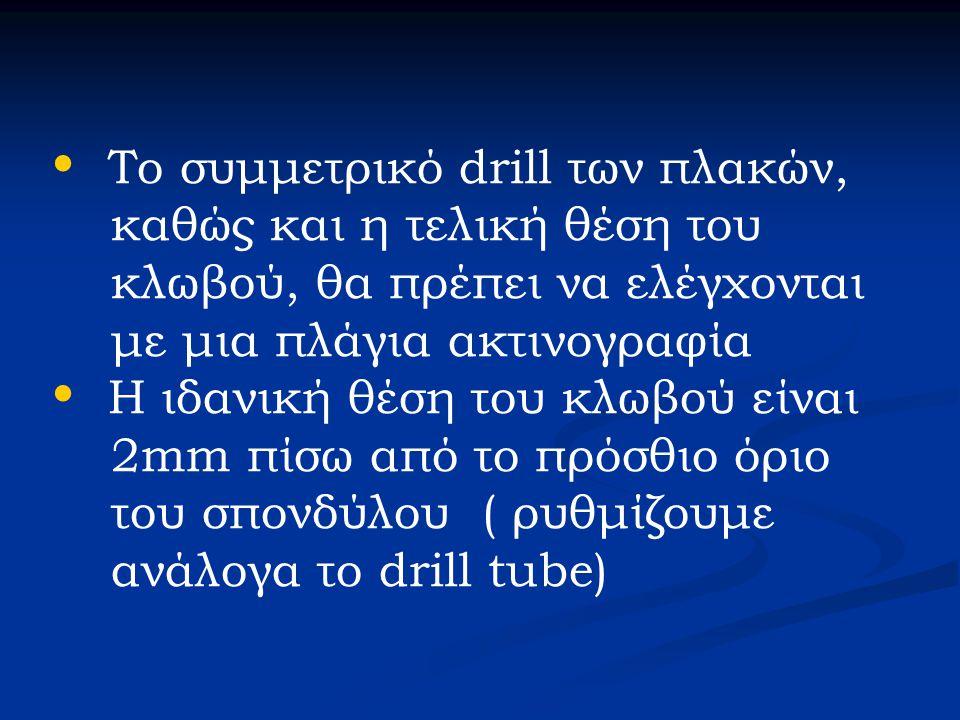 • Το συμμετρικό drill των πλακών, καθώς και η τελική θέση του κλωβού, θα πρέπει να ελέγχονται με μια πλάγια ακτινογραφία • Η ιδανική θέση του κλωβού ε