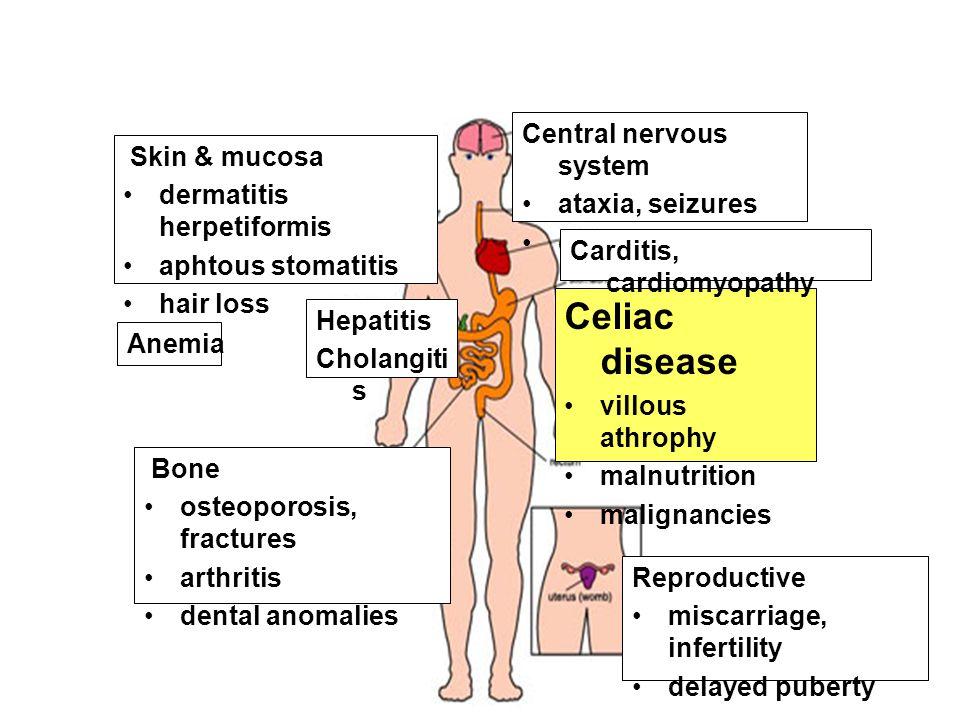 Celiac disease •villous athrophy •malnutrition •malignancies Bone •osteoporosis, fractures •arthritis •dental anomalies Hepatitis Cholangiti s Skin &