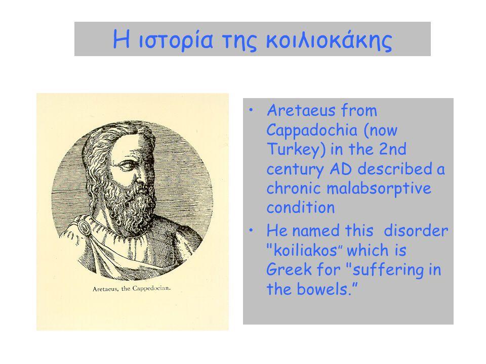 Η ιστορία της κοιλιοκάκης •Aretaeus from Cappadochia (now Turkey) in the 2nd century AD described a chronic malabsorptive condition •He named this dis
