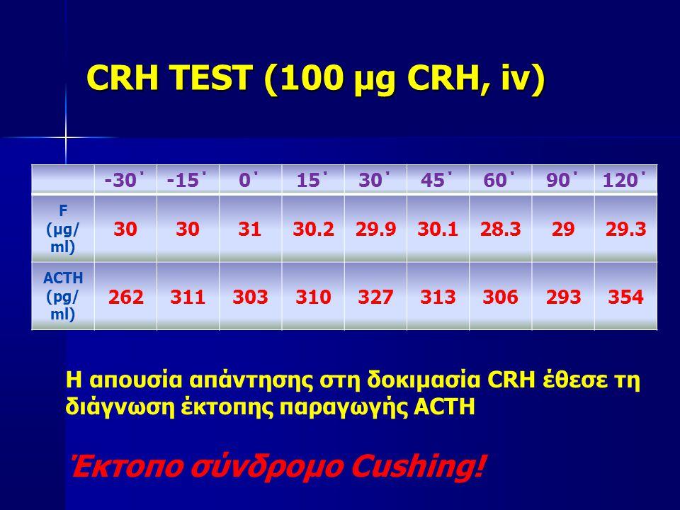 CRH TEST (100 μg CRH, iv) -30΄-15΄0΄15΄30΄45΄60΄90΄120΄ F (μg/ ml) 30 3130.229.930.128.32929.3 ACTH (pg/ ml) 262311303310327313306293354 Η απουσία απάντησης στη δοκιμασία CRH έθεσε τη διάγνωση έκτοπης παραγωγής ACTH Έκτοπο σύνδρομο Cushing!