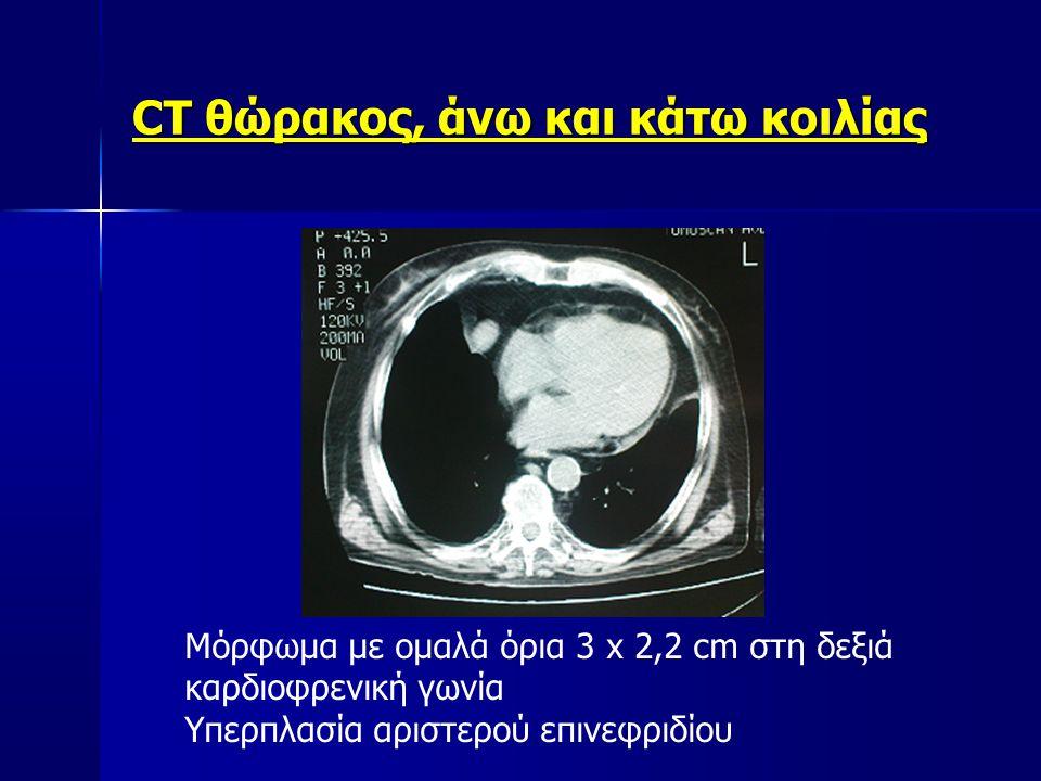 CT θώρακος, άνω και κάτω κοιλίας Μόρφωμα με ομαλά όρια 3 x 2,2 cm στη δεξιά καρδιοφρενική γωνία Υπερπλασία αριστερού επινεφριδίου