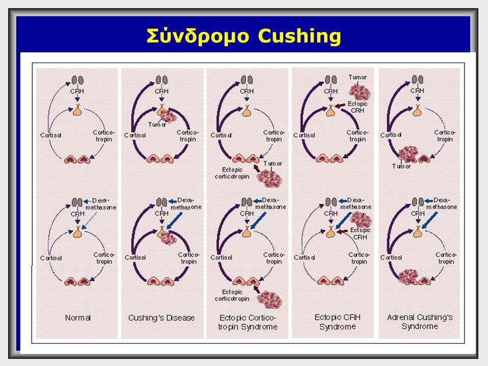 Διάγνωση Συνδρόμου Cushing  Κορτιζόλη ούρων 24ώρου φ.τ: 9.9±2.7 mg/24 h (27±7.5 µmol/24h)  12 to 40 µg (33 to 110 nmol) κορτιζόλης αποβάλλονται στα ούρα 24ώρου  Τα ανώτερα φυσιολογικά όρια τιμών κορτιζόλης ούρων 24ώρου είναι τα 90-100 µg  Κορτιζόλη ούρων 24ώρου >100 µg /24 hours  Cushing's syndrome  Pseudo-Cushing's syndrome  Major stress (trauma,infection) N Engl J Med 1995