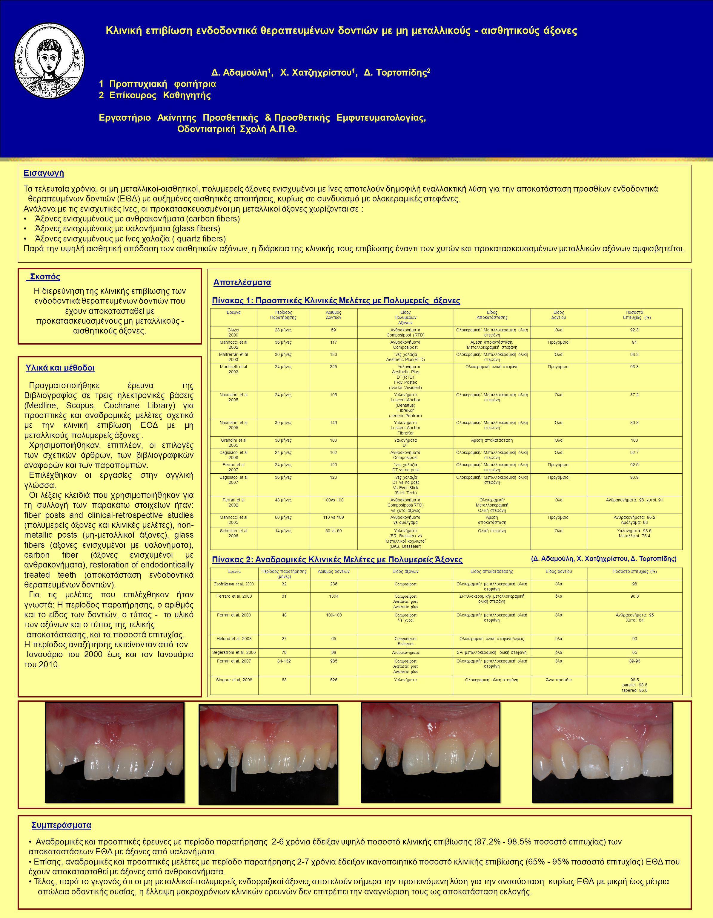 Κλινική επιβίωση ενδοδοντικά θεραπευμένων δοντιών με μη μεταλλικούς - αισθητικούς άξονες Δ.