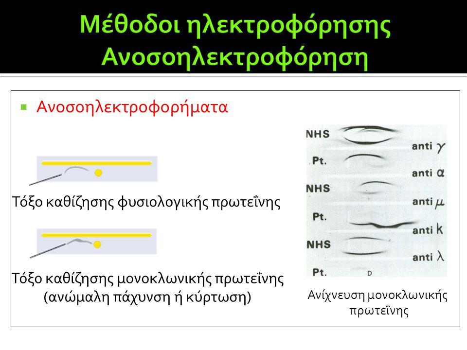  Ανοσοηλεκτροφορήματα Τόξο καθίζησης φυσιολογικής πρωτεΐνης Τόξο καθίζησης μονοκλωνικής πρωτεΐνης (ανώμαλη πάχυνση ή κύρτωση) Ανίχνευση μονοκλωνικής