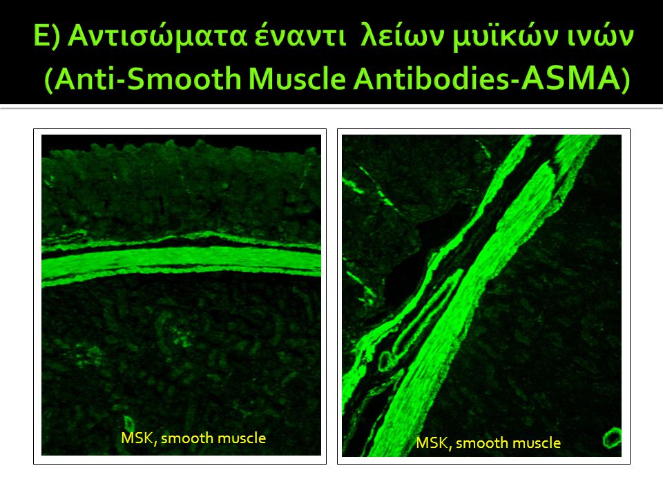MSK, smooth muscle