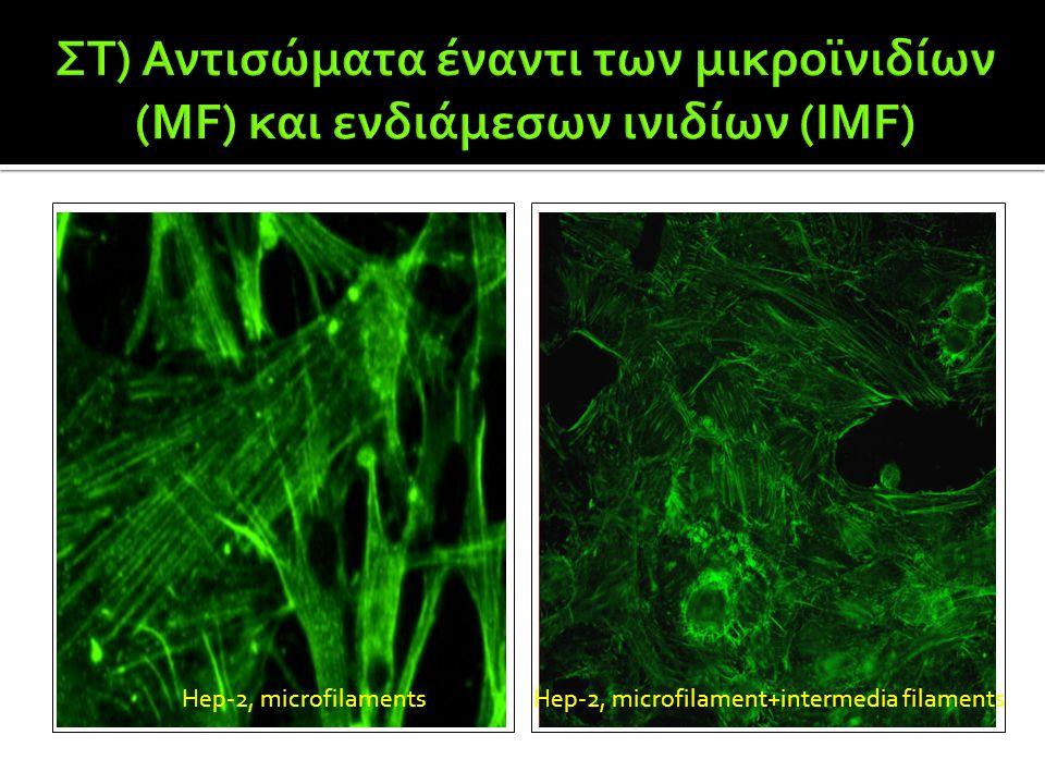 Hep-2, microfilamentsHep-2, microfilament+intermedia filaments