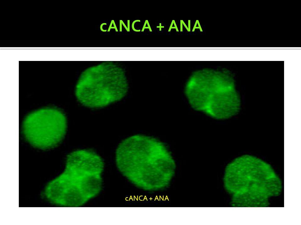 cANCA + ANA