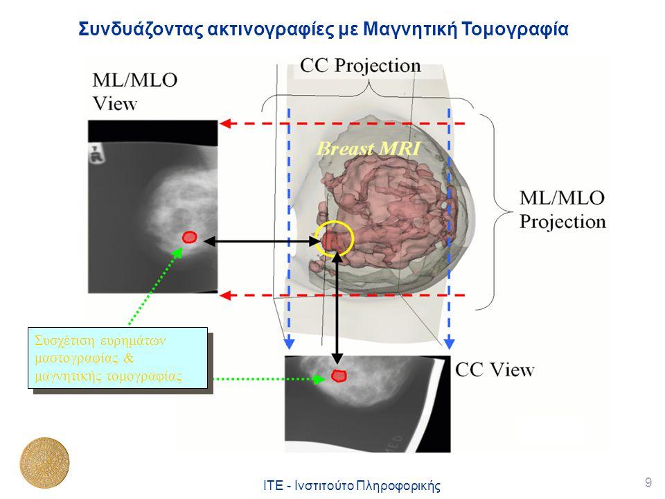 9 ΙΤΕ - Ινστιτούτο Πληροφορικής Συνδυάζοντας ακτινογραφίες με Μαγνητική Τομογραφία Συσχέτιση ευρημάτων μαστογραφίας & μαγνητικής τομογραφίας