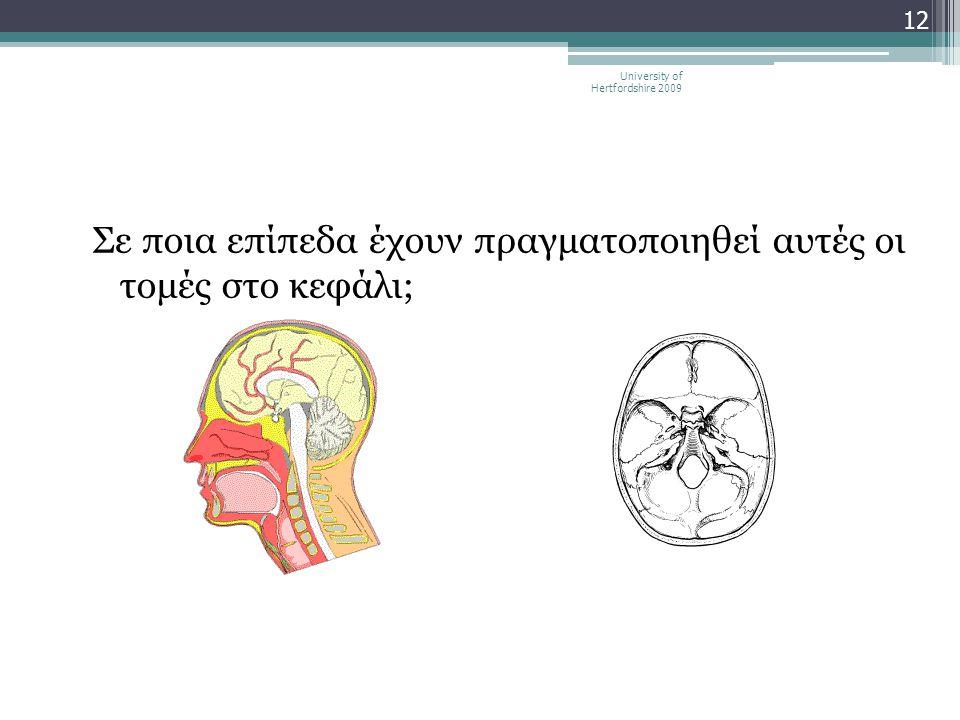 Σε ποια επίπεδα έχουν πραγματοποιηθεί αυτές οι τομές στο κεφάλι; University of Hertfordshire 2009 12
