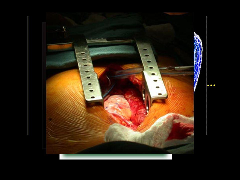 Και η καρδιά τι σχήμα έχει;Μοιάζει με ανάποδο αχλάδι…