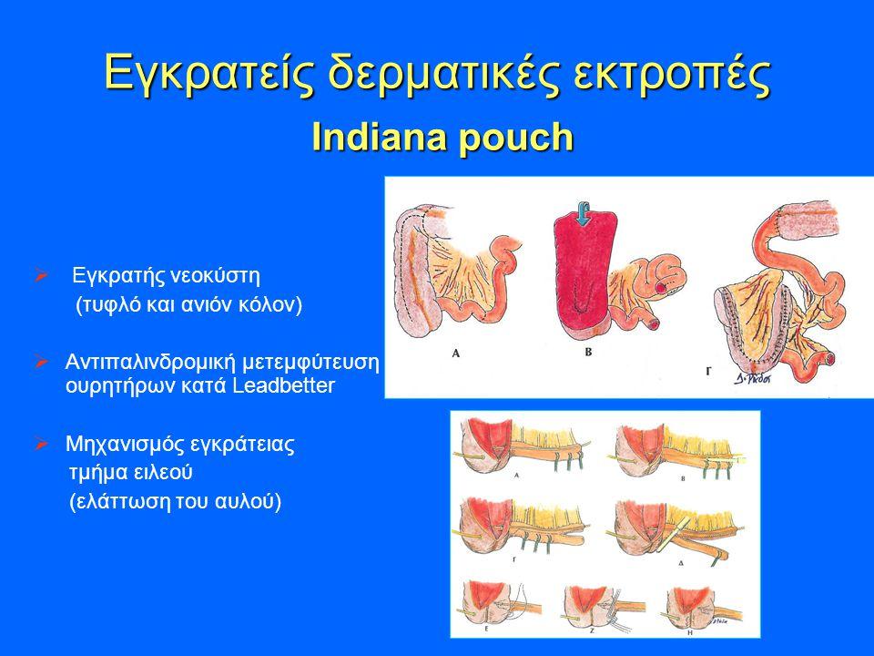 Εγκρατείς δερματικές εκτροπές Indiana pouch Εγκρατείς δερματικές εκτροπές Indiana pouch  Εγκρατής νεοκύστη (τυφλό και ανιόν κόλον)  Αντιπαλινδρομική μετεμφύτευση ουρητήρων κατά Leadbetter  Μηχανισμός εγκράτειας τμήμα ειλεού (ελάττωση του αυλού)