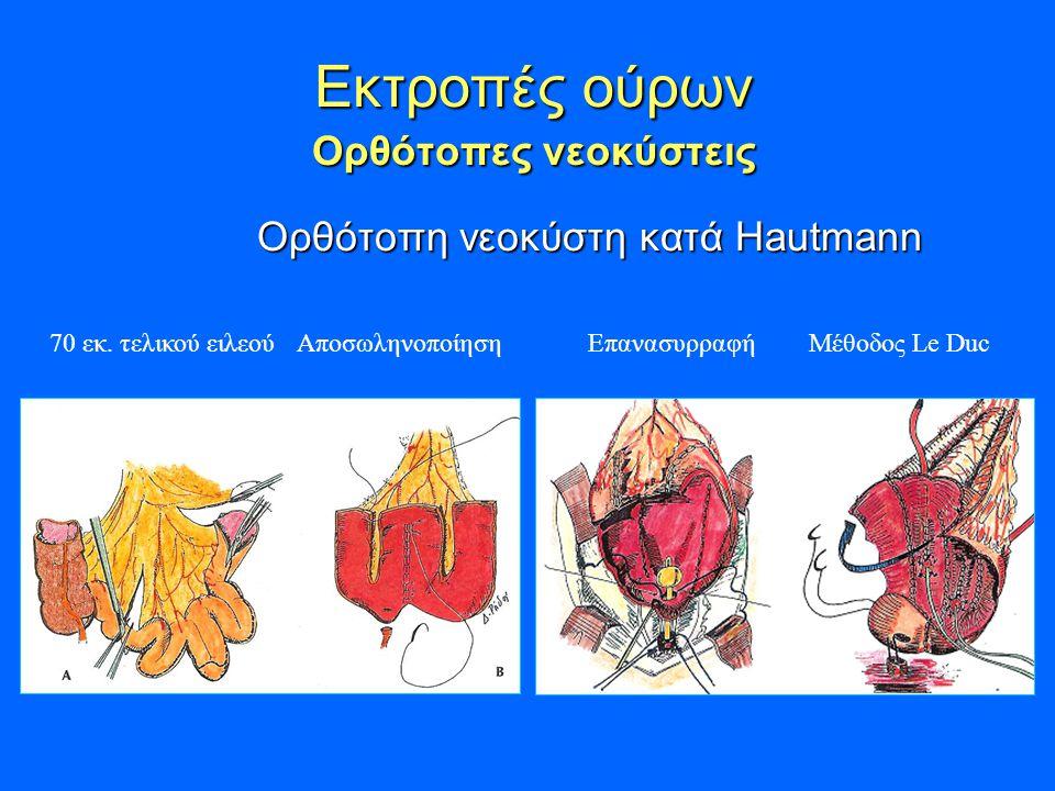 Εκτροπές ούρων Ορθότοπες νεοκύστεις Εκτροπές ούρων Ορθότοπες νεοκύστεις Ορθότοπη νεοκύστη κατά Hautmann Ορθότοπη νεοκύστη κατά Hautmann 70 εκ.