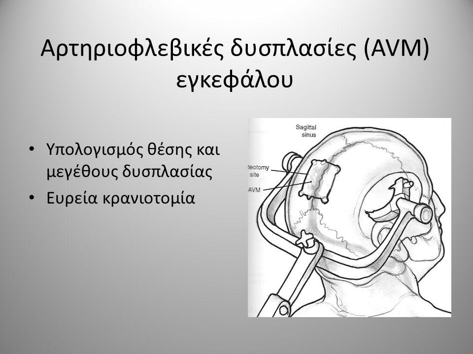 Αρτηριοφλεβικές δυσπλασίες (AVM) εγκεφάλου • Υπολογισμός θέσης και μεγέθους δυσπλασίας • Ευρεία κρανιοτομία
