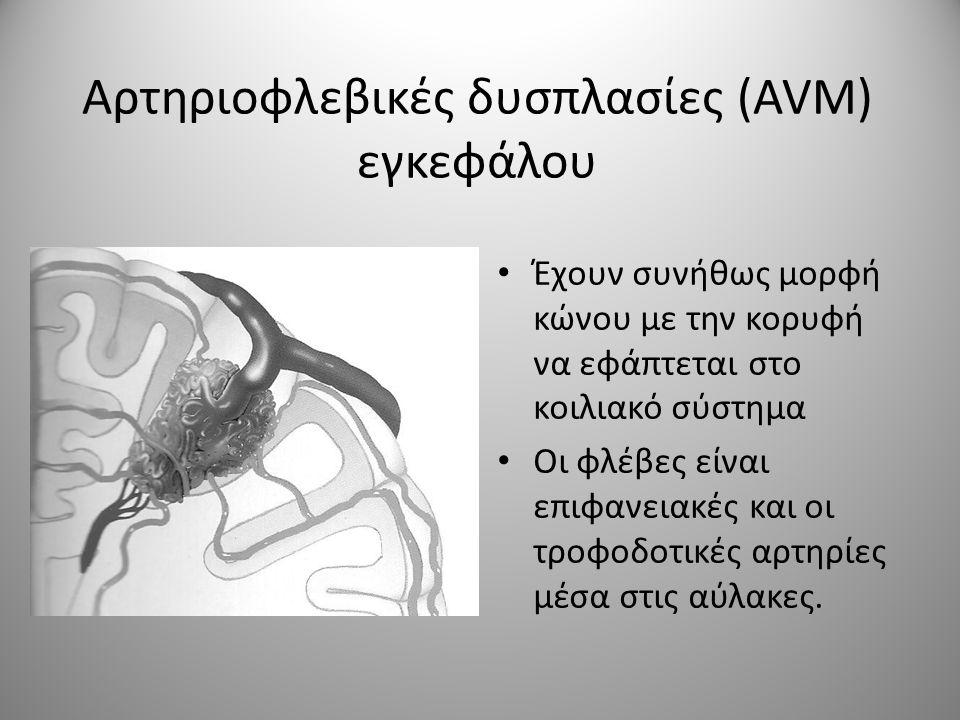 Αρτηριοφλεβικές δυσπλασίες (AVM) εγκεφάλου • Έχουν συνήθως μορφή κώνου με την κορυφή να εφάπτεται στο κοιλιακό σύστημα • Οι φλέβες είναι επιφανειακές