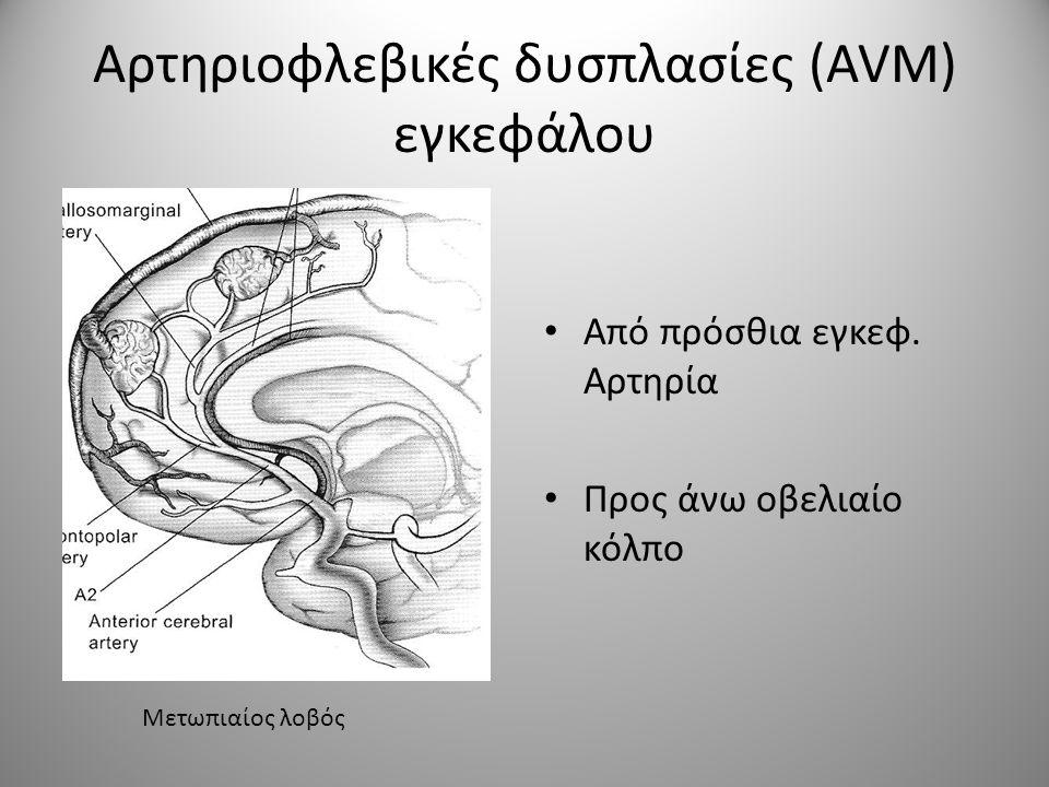 Αρτηριοφλεβικές δυσπλασίες (AVM) εγκεφάλου • Από πρόσθια εγκεφ. Αρτηρία • Προς άνω οβελιαίο κόλπο Μετωπιαίος λοβός