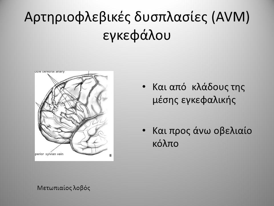 Αρτηριοφλεβικές δυσπλασίες (AVM) εγκεφάλου Κλίμακα SPETZLER – MARTIN Μέγεθος δυσπλασίας Ευαίσθητη περιοχή Φλεβικό δίκτυο Μικρό <3cm Μεσαίο 3-6cm Μεγάλο >6cm 123123 Όχι Ναι 0101 Επιπολής Εν τω βάθει 1212