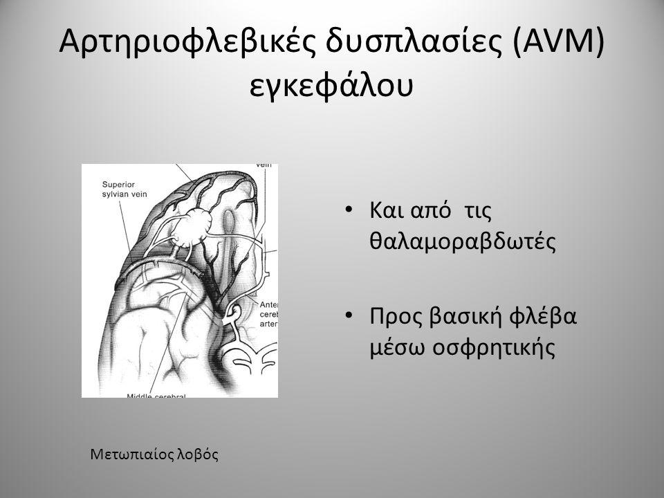 Αρτηριοφλεβικές δυσπλασίες (AVM) εγκεφάλου • Έχουν συνήθως μορφή κώνου με την κορυφή να εφάπτεται στο κοιλιακό σύστημα • Οι φλέβες είναι επιφανειακές και οι τροφοδοτικές αρτηρίες μέσα στις αύλακες.