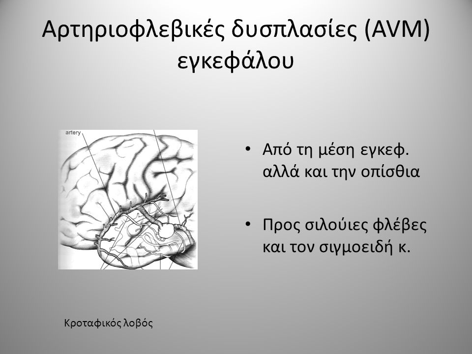 Αρτηριοφλεβικές δυσπλασίες (AVM) εγκεφάλου • Από τη μέση εγκεφ. αλλά και την οπίσθια • Προς σιλούιες φλέβες και τον σιγμοειδή κ. Κροταφικός λοβός