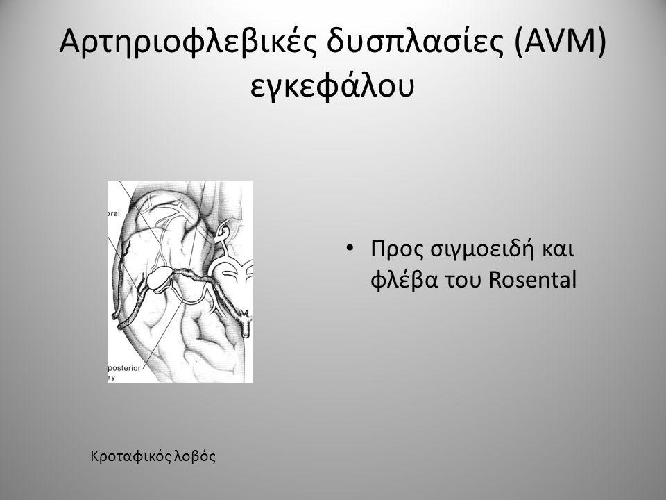 Τρείς τύποι αρτηριών υπάρχουν γύρω από τη δυσπλασία: • Αρτηρίες που αποκλειστικά τροφοδοτούν τη δυσπλασία • Αρτηρίες που τροφοδοτούν τη δυσπλασία αλλά και το φυσιολογικό παρακείμενο παρέγχυμα • Αρτηρίες που προσπερνούν τη δυσπλασία και τροφοδοτούν το φυσιολογικό παρέγχυμα.