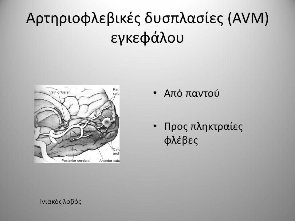Αρτηριοφλεβικές δυσπλασίες (AVM) εγκεφάλου • Από παντού • Προς πληκτραίες φλέβες Ινιακός λοβός