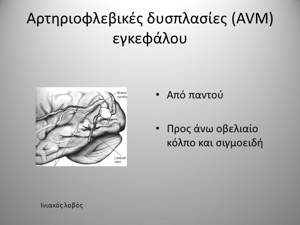 • Οι δυσπλασίες του οπίσθιου κρανιακού βόθρου είναι σπάνιες και αφορούν: • Τα ημισφαίρια παρεγκεφαλίδος • Το σκώληκα και τη IV κοιλία • Το στέλεχους • Οι τροφοδοτικές αρτηρίες παίρνουν από την: άνω παρεγκεφαλιδική ή την οπίσθια κάτω παρεγκεφαλιδική • Οι παροχετευτικές φλέβες εκβάλουν σ΄όλη την περιοχή Αρτηριοφλεβικές δυσπλασίες (AVM) εγκεφάλου