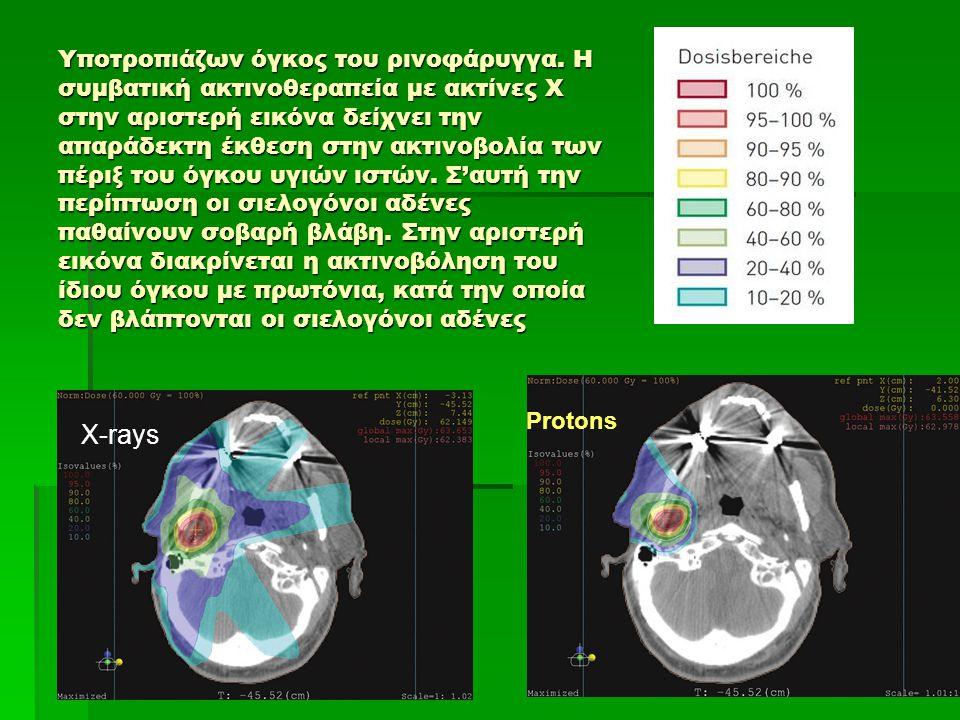 Υποτροπιάζων όγκος του ρινοφάρυγγα. Η συμβατική ακτινοθεραπεία με ακτίνες Χ στην αριστερή εικόνα δείχνει την απαράδεκτη έκθεση στην ακτινοβολία των πέ