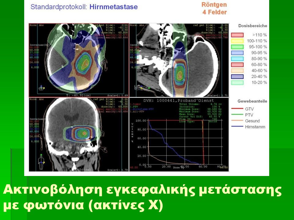 Ακτινοβόληση εγκεφαλικής μετάστασης με φωτόνια (ακτίνες Χ)