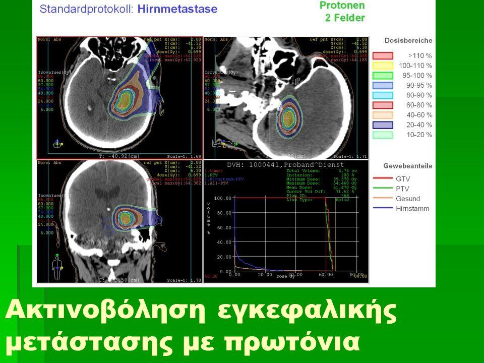Ακτινοβόληση εγκεφαλικής μετάστασης με πρωτόνια