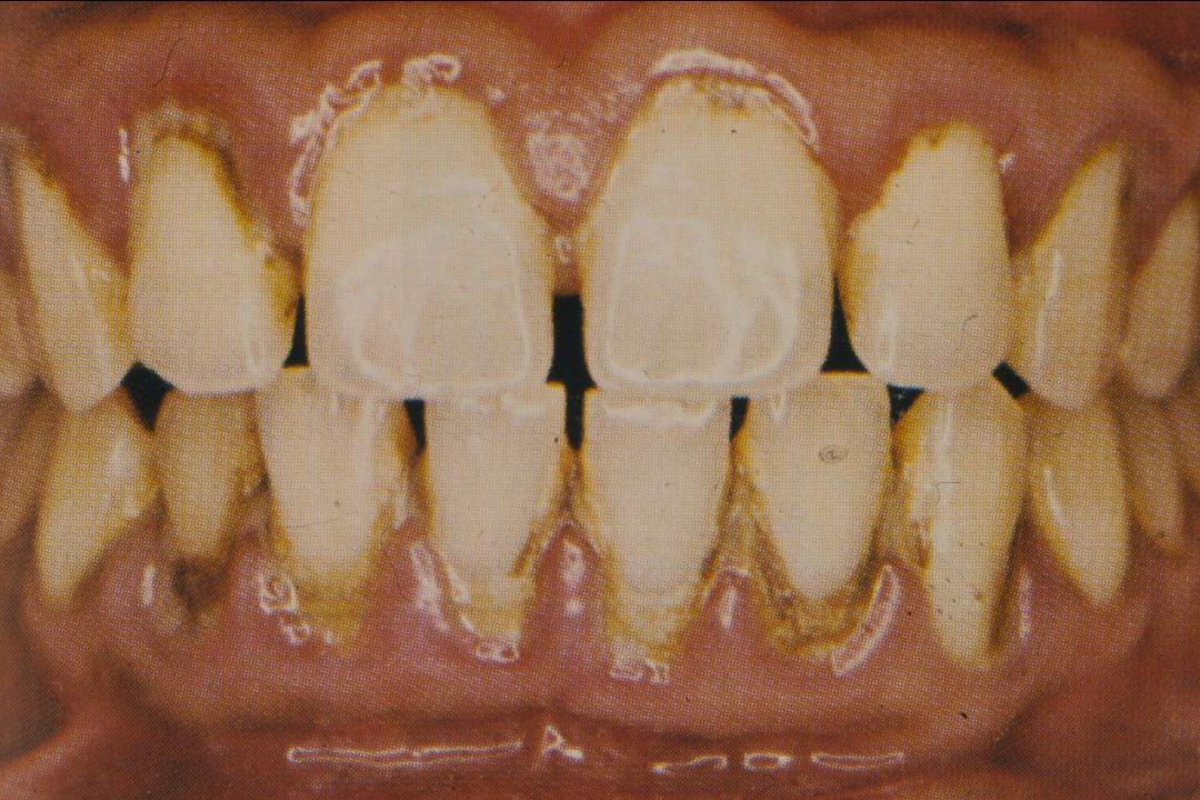 Έμφραξη μιας επιφάνειας ( απεικόνιση της έμφραξης σύμφωνα με τα όρια των οδοντικών επιφανειών ) Π Γ ΕΑ ένωση παρειακής και ομόρων επιφανειών